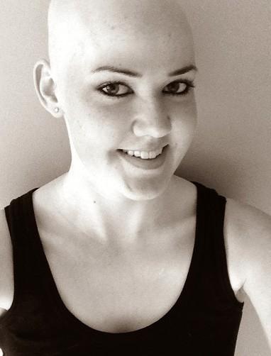 ung thư không có nghĩa là xấu xí