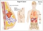 10 dấu hiệu ung thư vú giai đoạn cuối