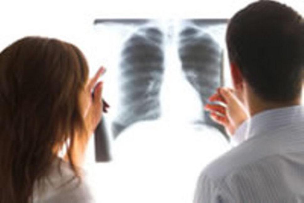 Những điều lưu ý dành cho người Ung thư phổi
