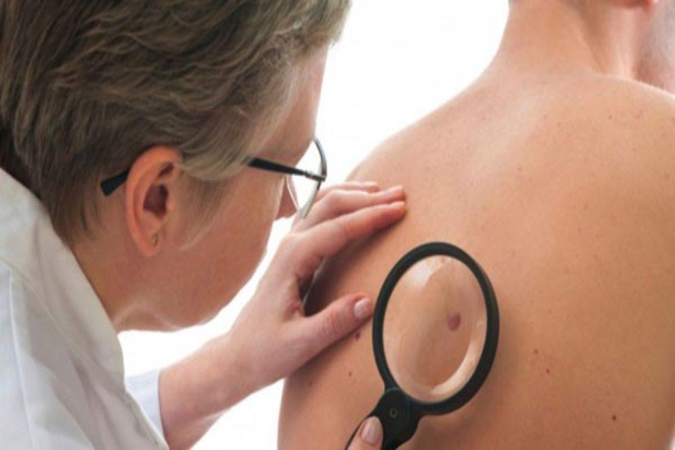 Biểu hiện bệnh ung thư da giai đoạn cuối và cách chữa trị