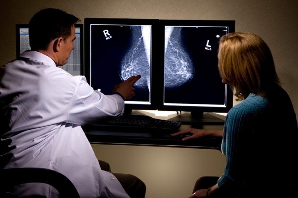 Người bệnh ung thư vú sống được bao lâu?