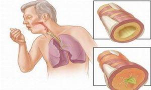 Phương pháp chữa bệnh ung thư phổi giai đoạn cuối