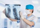 Phương pháp điều trị bệnh ung thư phổi giai đoạn cuối
