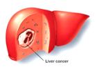 Phương pháp điều trị ung thư gan hiệu quả