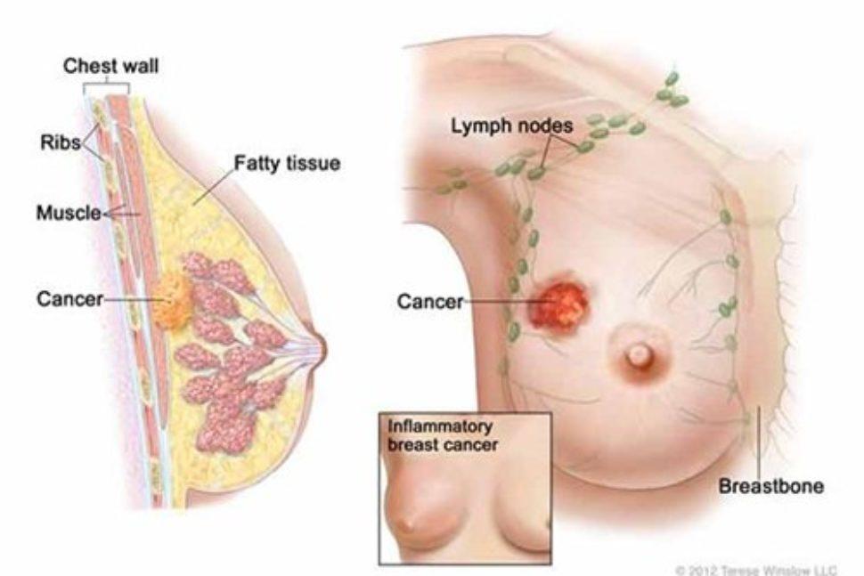 Tâm lý người bệnh ung thư diễn biến như thế nào?