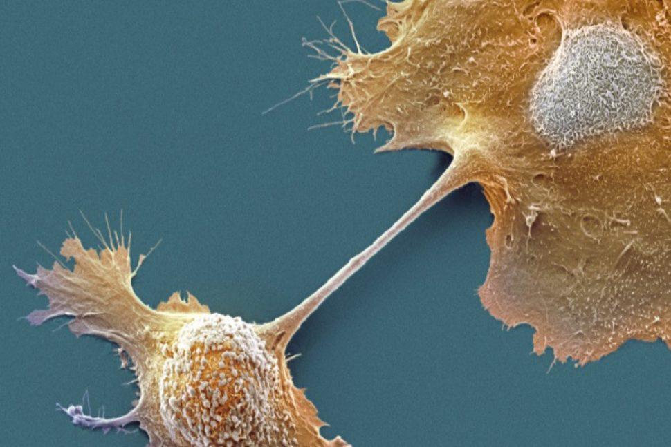 Tìm ra thuốc chữa bệnh ung thư tuyến tụy giai đoạn cuối